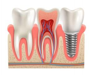 Установка импланта зубов в Москве
